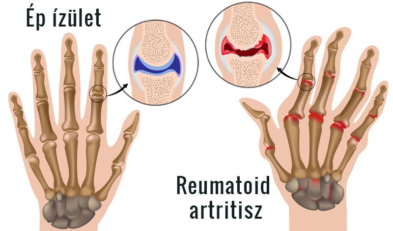 Az ember keze ízületei fájnak. Ízületi gondot jelezhet