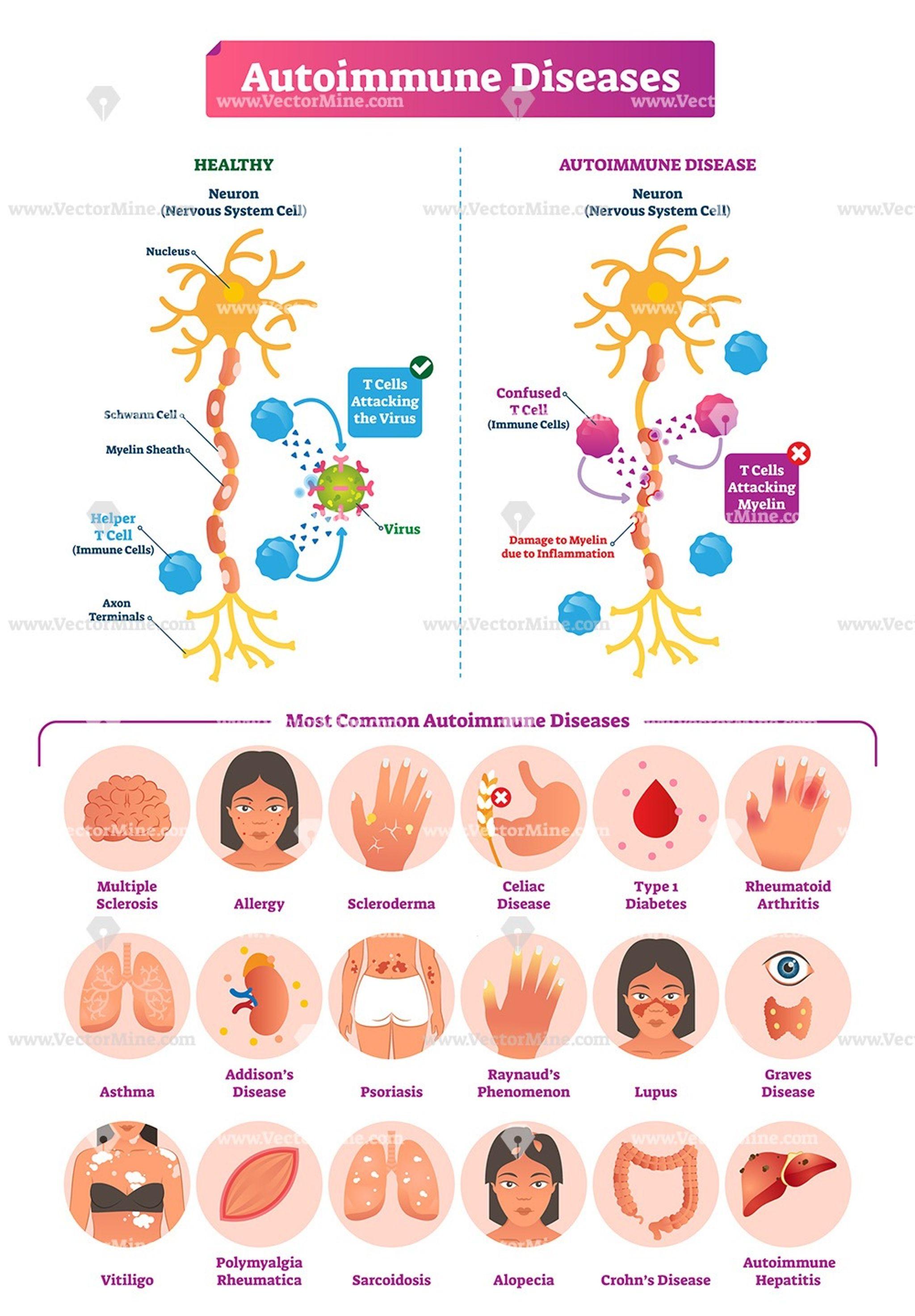 arthrosis kezelés taganrogban