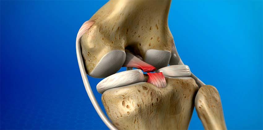 a vállízület diagnózisa a gerinc lumbosacrális kenőcsének kezelése