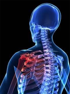 a bal könyökízület deformált artrózisa