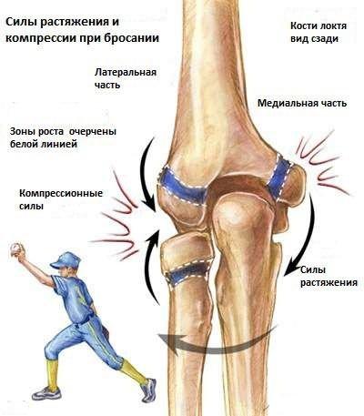 a boka ízületének deformáló osteoarthrosis kezelése