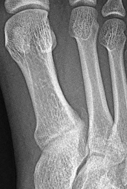 lábízületi betegség diagnosztizálása