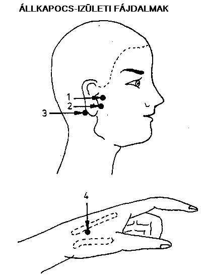 coxarthrosis kezelése ízületi szerrel