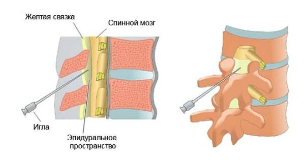 a gyógyszer bevezetése az ízületbe