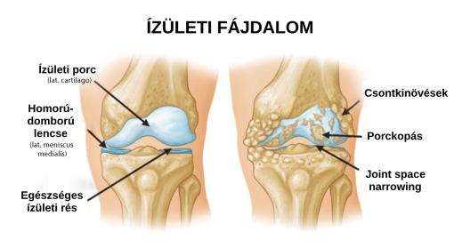 a karok lábainak ízületei fáj a nyakat duzzadt nyirokcsomók és fájó ízületek