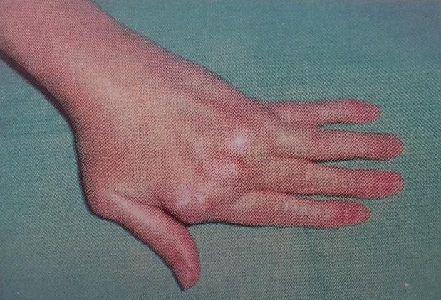 a kézízületek betegségeinek nevei a csípőízület artrózisának hatékony kezelése