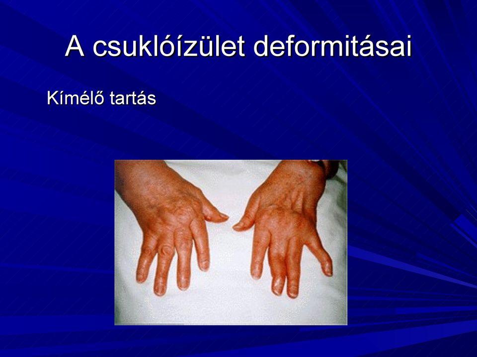 a kézízületek betegségeinek nevei kondroxid artritisz kenőcs kenőcs