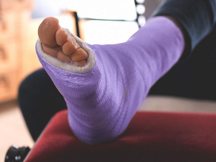 a láb helyreállítása boka törés után