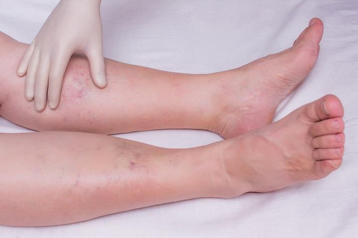 a lábak ízületeinek fájdalma és duzzanata széna ízületi kezelés