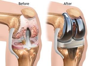 a térd artrózisának diagnosztizálása, mit kell tenni ízületi fájdalom a gerinc miatt