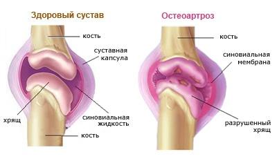 a térd deformált artrózisának kezelési rendje csípő fájdalom kezelése