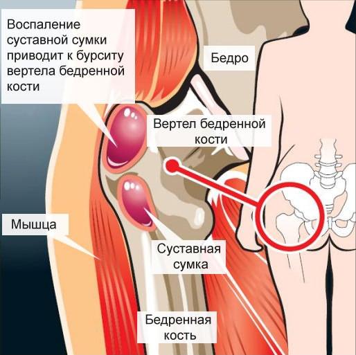 a vállízület romboló artrózisa