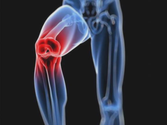osteoarthritis ozokerite kezelés áttekintése artrózis térdgyulladás kezelés
