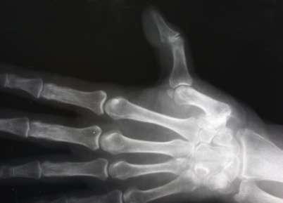 arthrosis kezelés konzervatív kezelés