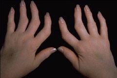 izületi fájdalmak ellen természetesen ízületi fájdalom oka és kezelése