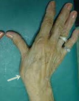 térdízületi ízületi gyulladás tünetek kezelése gél hátul és ízületeknél
