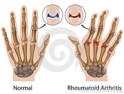 az ujj hevesen fáj az ízületben