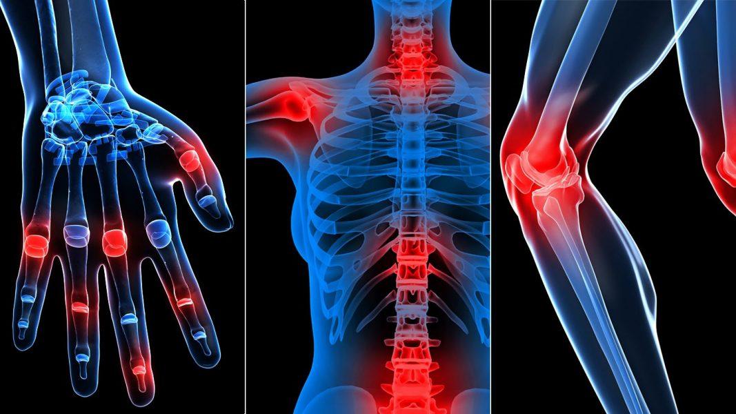 kezelje a könyök sprainjét padagra ízületi fájdalom