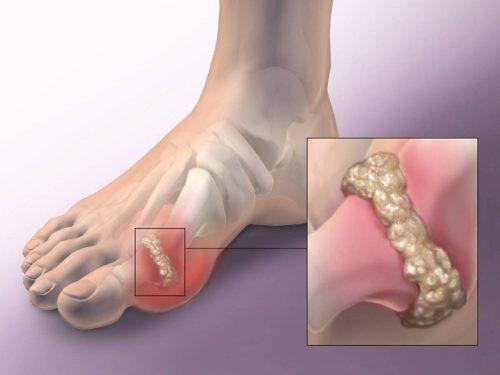 miért fáj az ujjak és a lábujjak ízületei