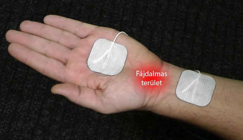 a deformáló artrózis modern kezelése lüktető fájdalom a térdben