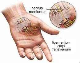a csuklóízület a bal kezén fáj