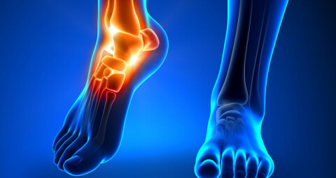 hatékony kenőcs az artrózis kezelésére ízületi fáj az éjszaka
