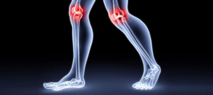 térd fájó fájdalma kötőszöveti atrófiás kezelés