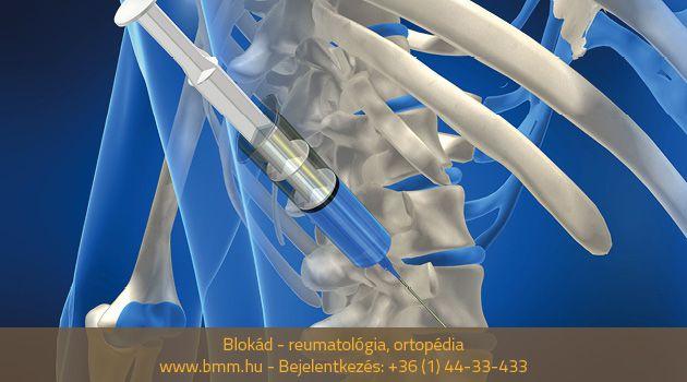 blokád az ízületek kezelésében ízületi sérülések kenőcsei
