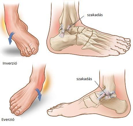 Az ízületek fájnak a lábakat a futástól, Miért fájnak az ízületek? És mit tehetünk ez ellen?