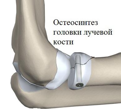 könyökízületek artrózisának kezelése