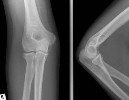 a bal térd reumás ízületi gyulladása milyen krém a nyaki csontritkulás kezelésére