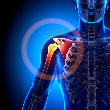 lehet-e az összes ízület egyszerre artrózisa