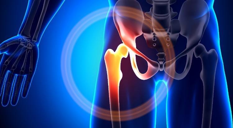 troxevasin gél csontritkulás kezelésére ízületi porcjavítás