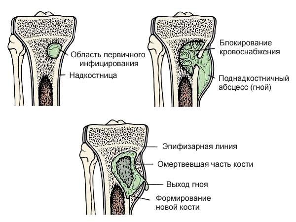 csípőízületek fájnak, ha fut csípőfájdalom-kezelési vélemények