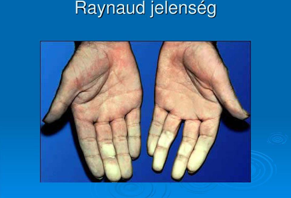 kötőszöveti betegségek differenciáldiagnosztikája