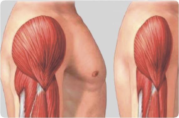a csípőízület dysplasztikus coxarthrosisának kezelése