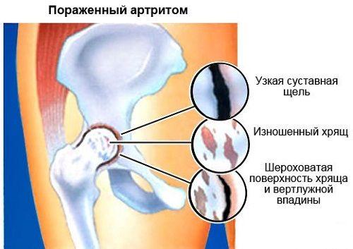 az acetabulum csípőízülete fáj poszttraumás boka artrózis kezelése