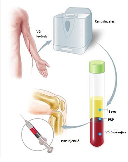 A fájó ízületek kezelése - HáziPatika