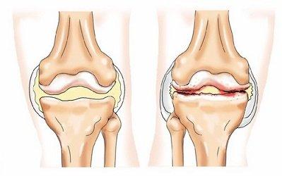 deformáló artrózis a térd 1 fokán ízületi fájdalom kezelése hepatitisz esetén