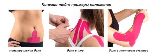 ízületi fájdalom a vállban és a karokban vange arthrosis kezelés