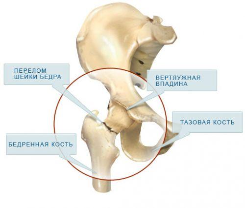 az acetabulum csípőízülete fáj mi az artrózis és hogyan kezelhető