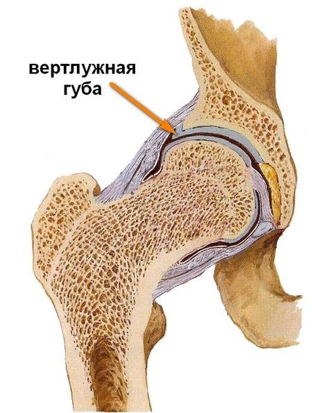 Segít meggyógyítani a térd artrózisát