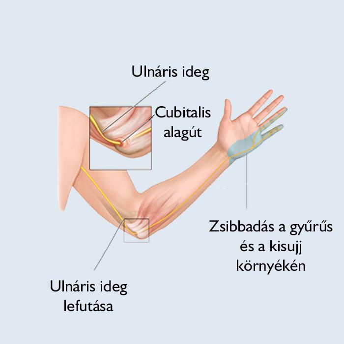 könyök ízületi tünetek a térd merevsége sérülés után