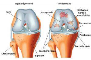 sokkhullám artrosis kezelése alkoholos antiszkópos kezelés