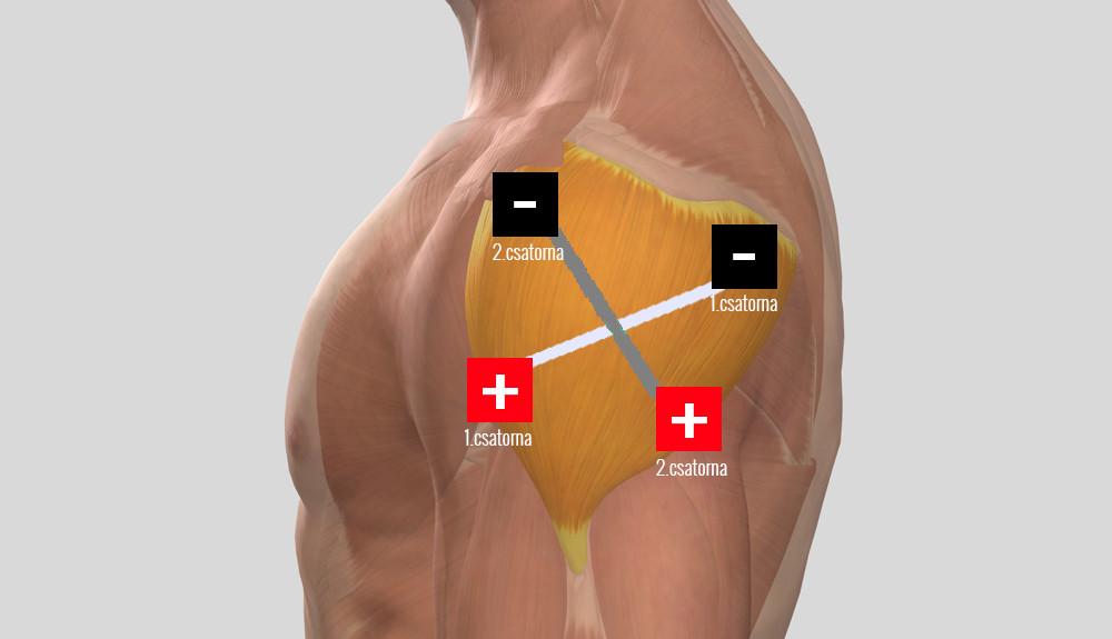 Befagyott váll szindróma - Megrontja a vállízületet és fáj a kezelést