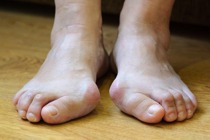 a lábujjak ízületeinek artritisz kezelése)