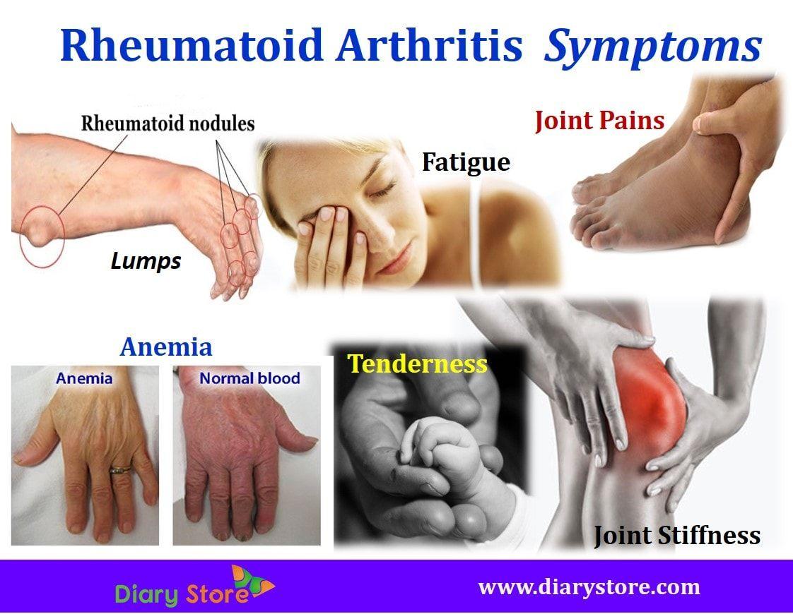 duzzadt térdízületi fájdalom csípő fájdalom lábtól lábig