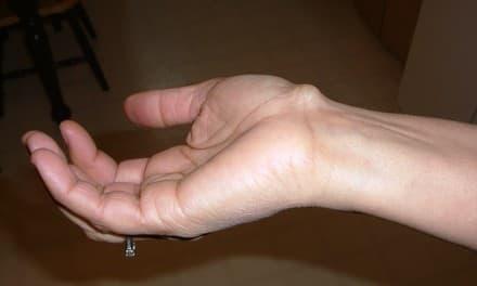 phalangealis ízületi betegség izoprinozin utáni ízületi fájdalom