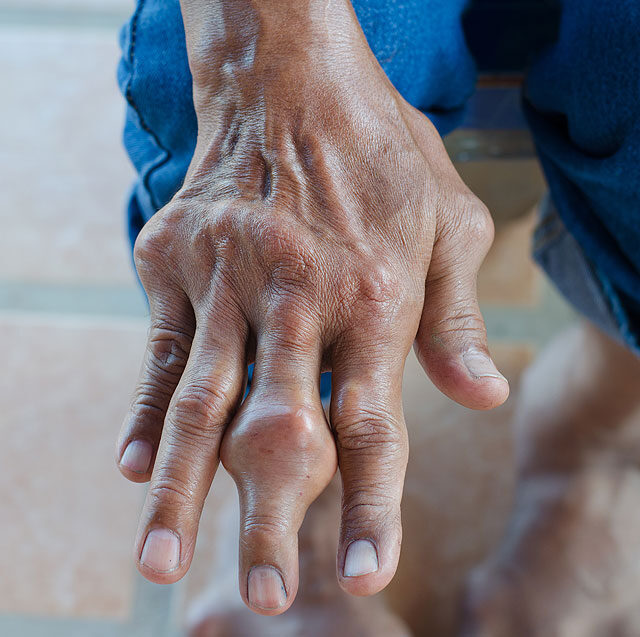 a kéz artritiszének első jelei