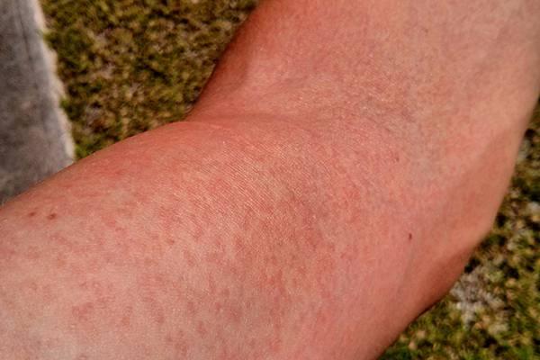 vörös kiütés és ízületi fájdalom hogyan lehet enyhíteni az ízületi gyulladásokat és fájdalmakat